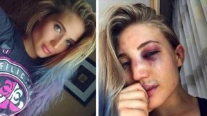 A competidora do Bellator Anastasia Yankova antes e depois da sua última luta